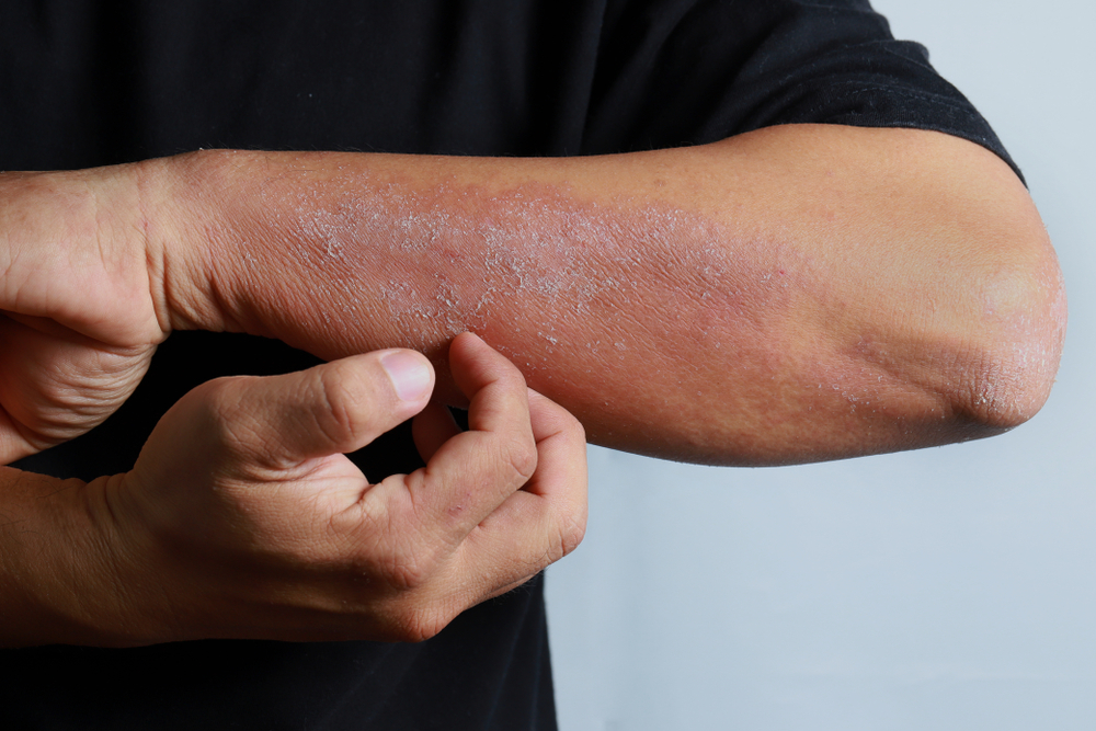 baba dermatitis