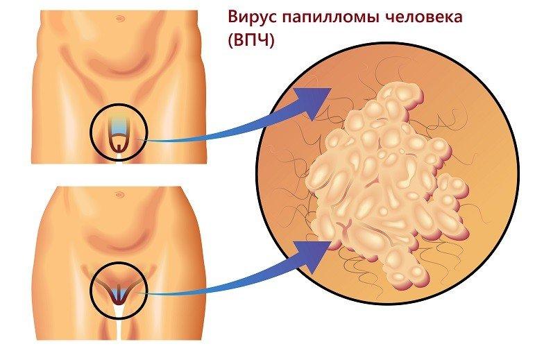 kriodestrukció a genitális szemölcsöknél