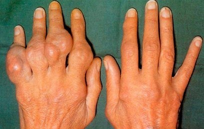 rák malignus szarkóma