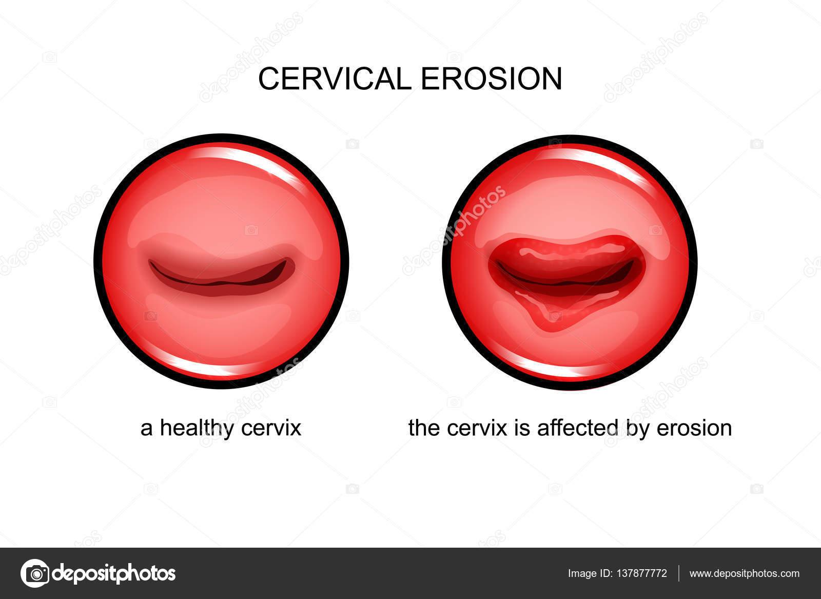 szemölcsök cauterize erózió