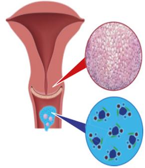 papilloma vírus és a női termékenység