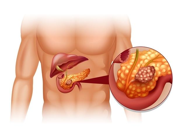 Hasnyálmirigy daganat | bestgumi.hu