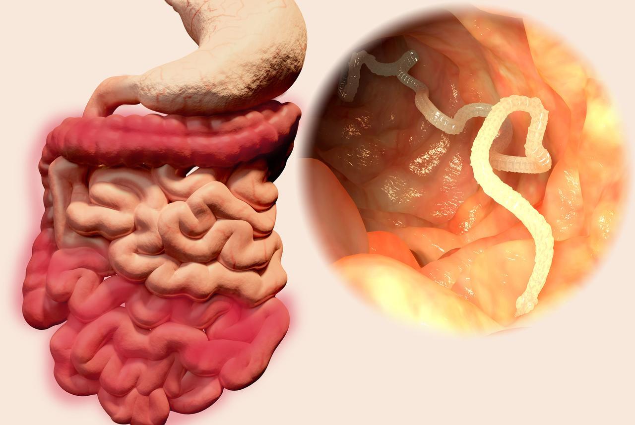 paraziták és crijevima covjeka)