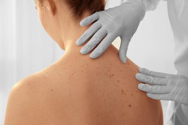 Bőrrákra utalhat a fájdalom és viszketés - Dermatológia - bestgumi.hu