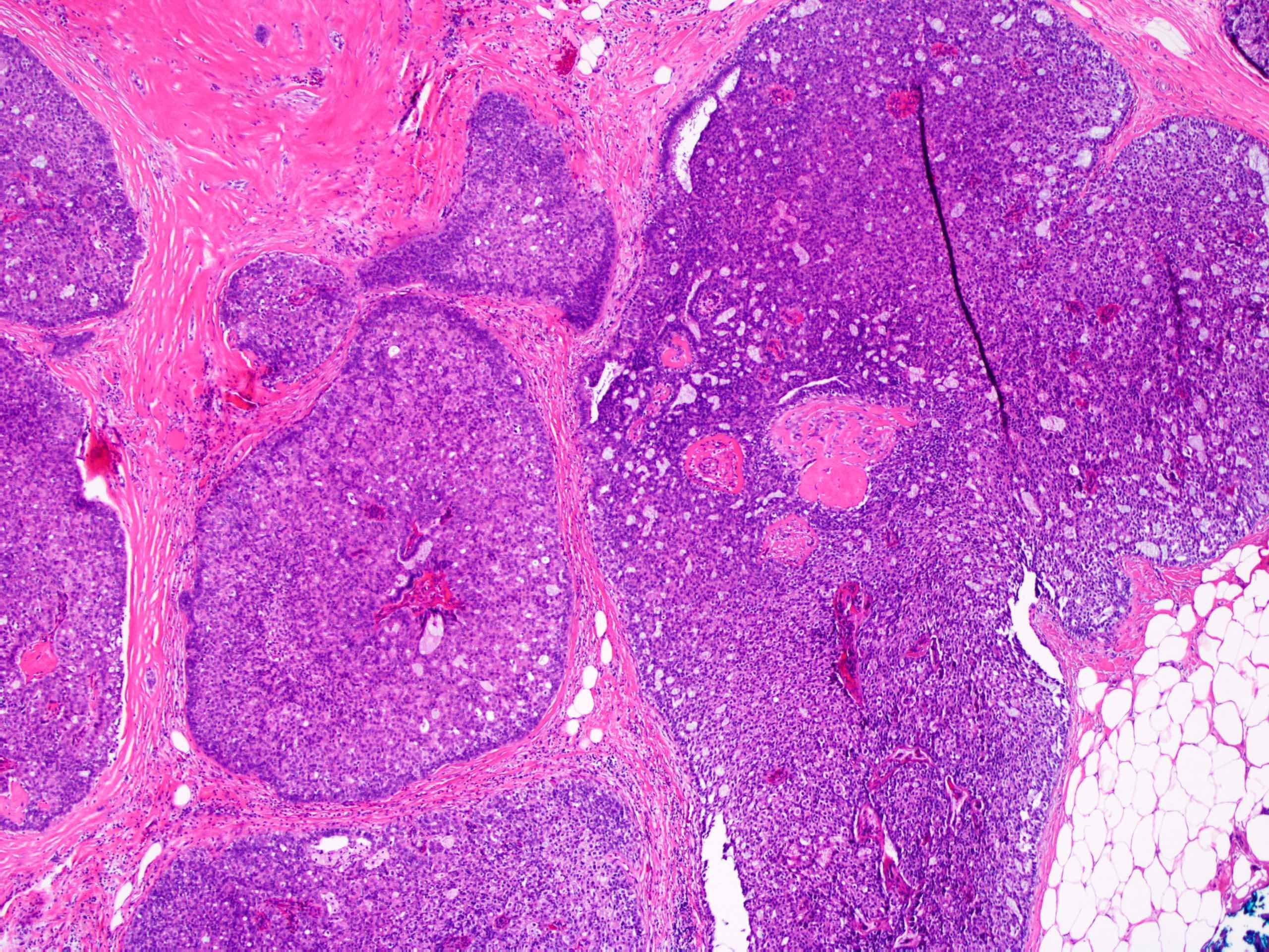 atipikus ductalis hyperplasia és papilloma papillómák miből és hogyan kell kezelni