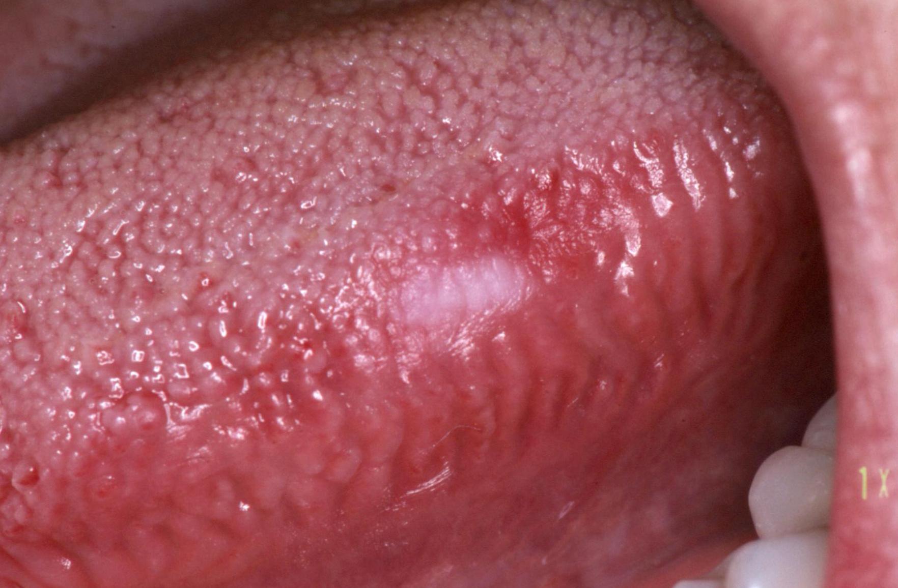 emberi papillomavírus a nyelven