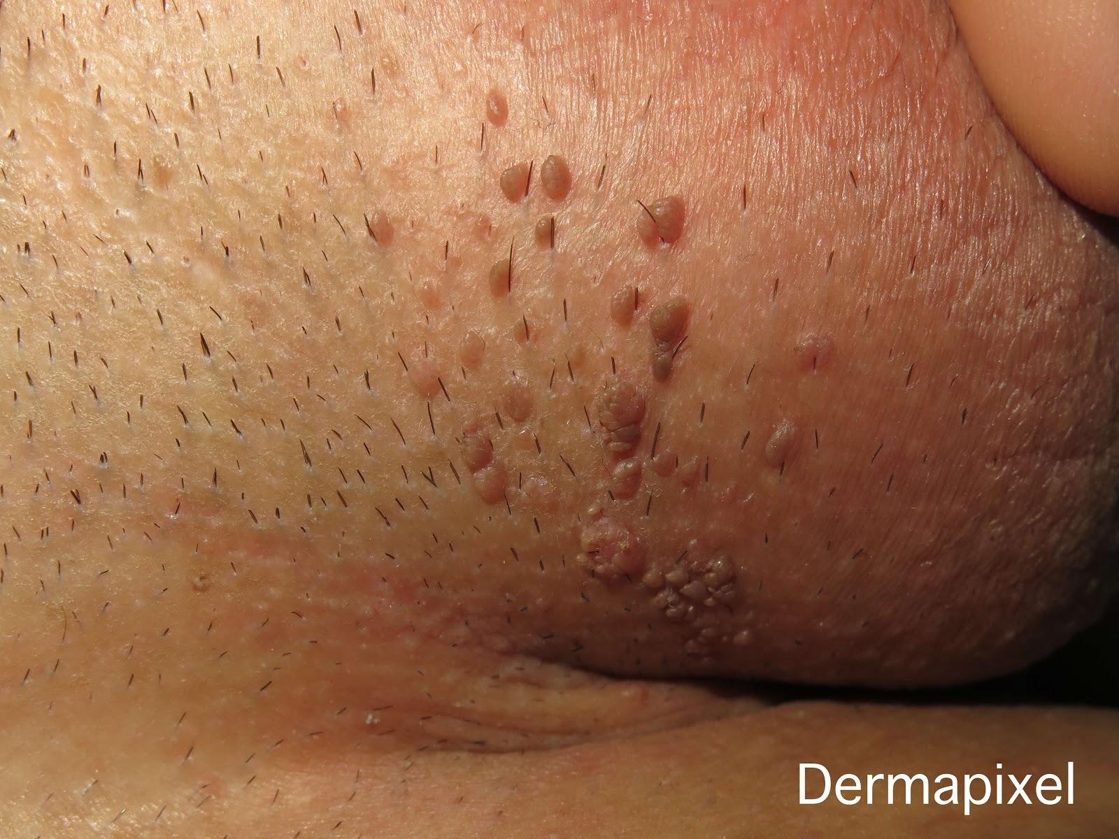 genitális papilloma vírus fergus vízben