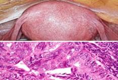 endometrium rák biomarkerek