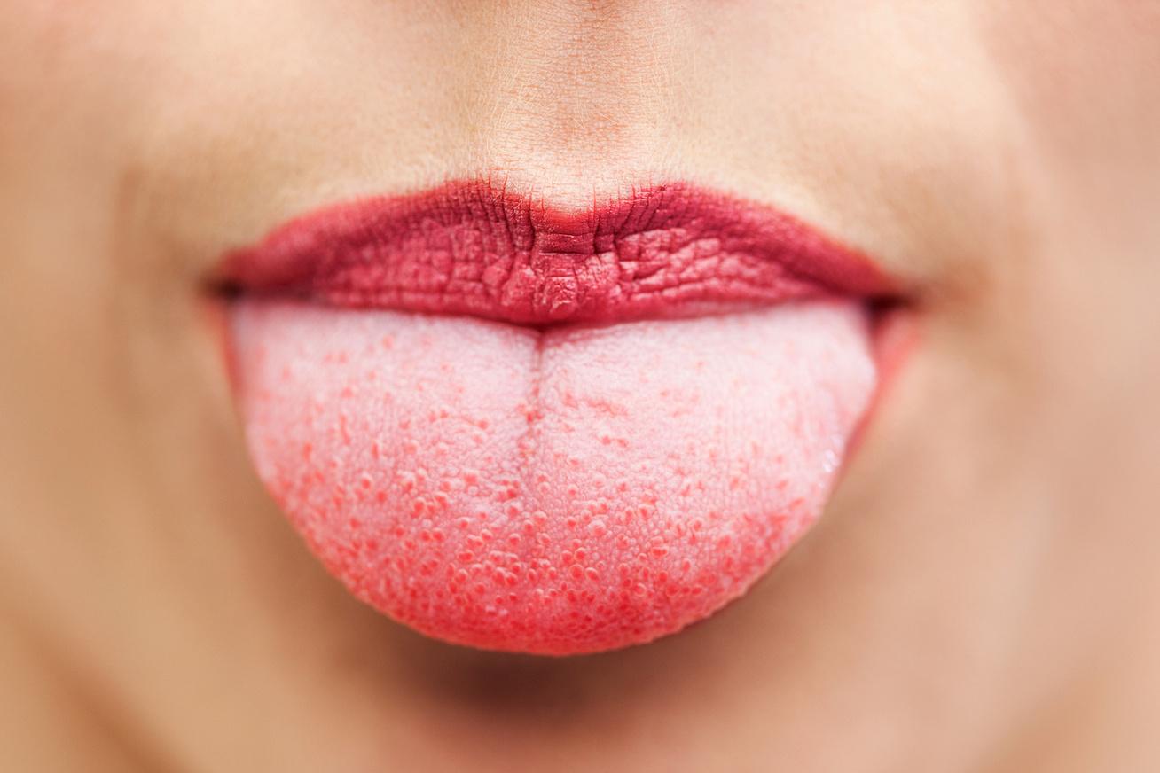 szemölcs nyelve fehér
