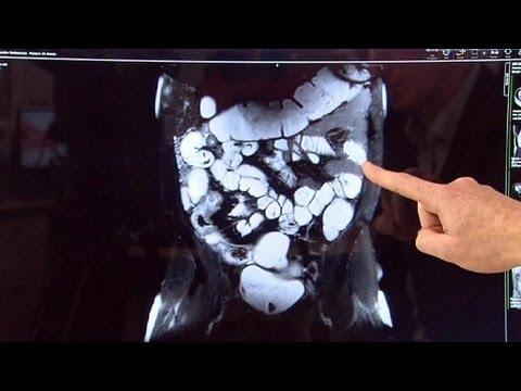 a bél helminthiasisának kezelése)