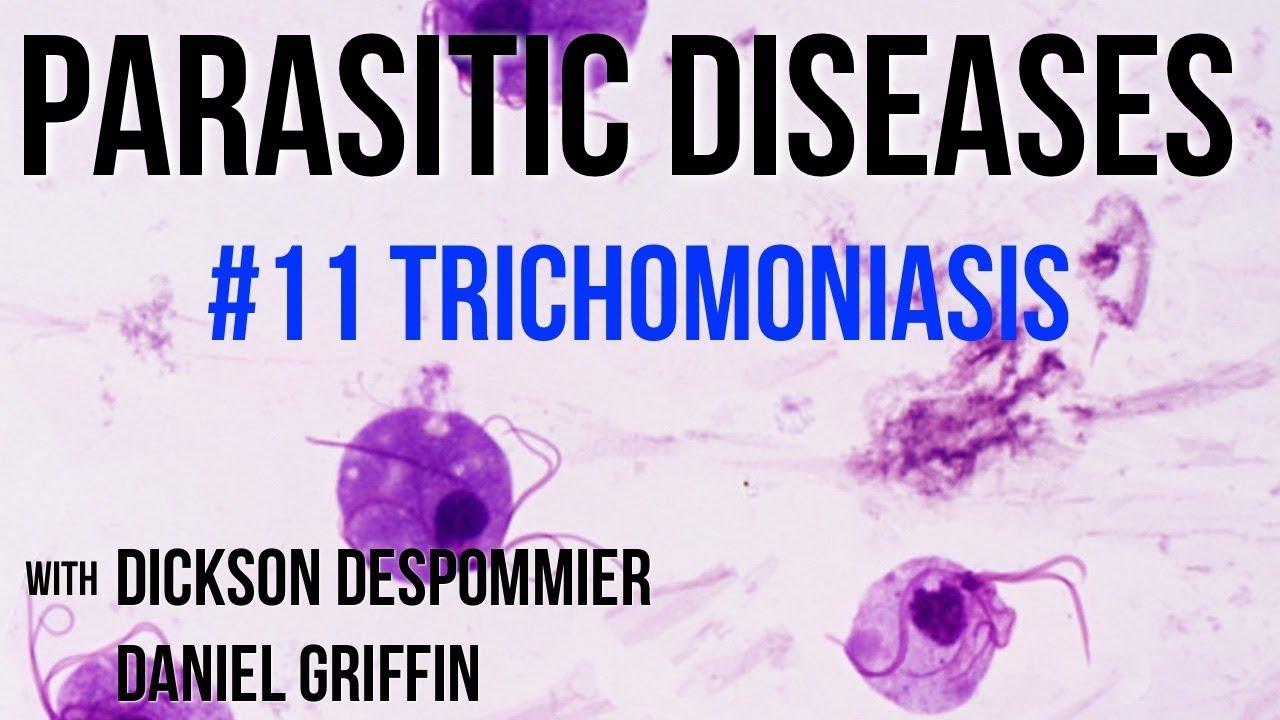 Mi van, ha a kenetben Trichomonas található - bestgumi.hu