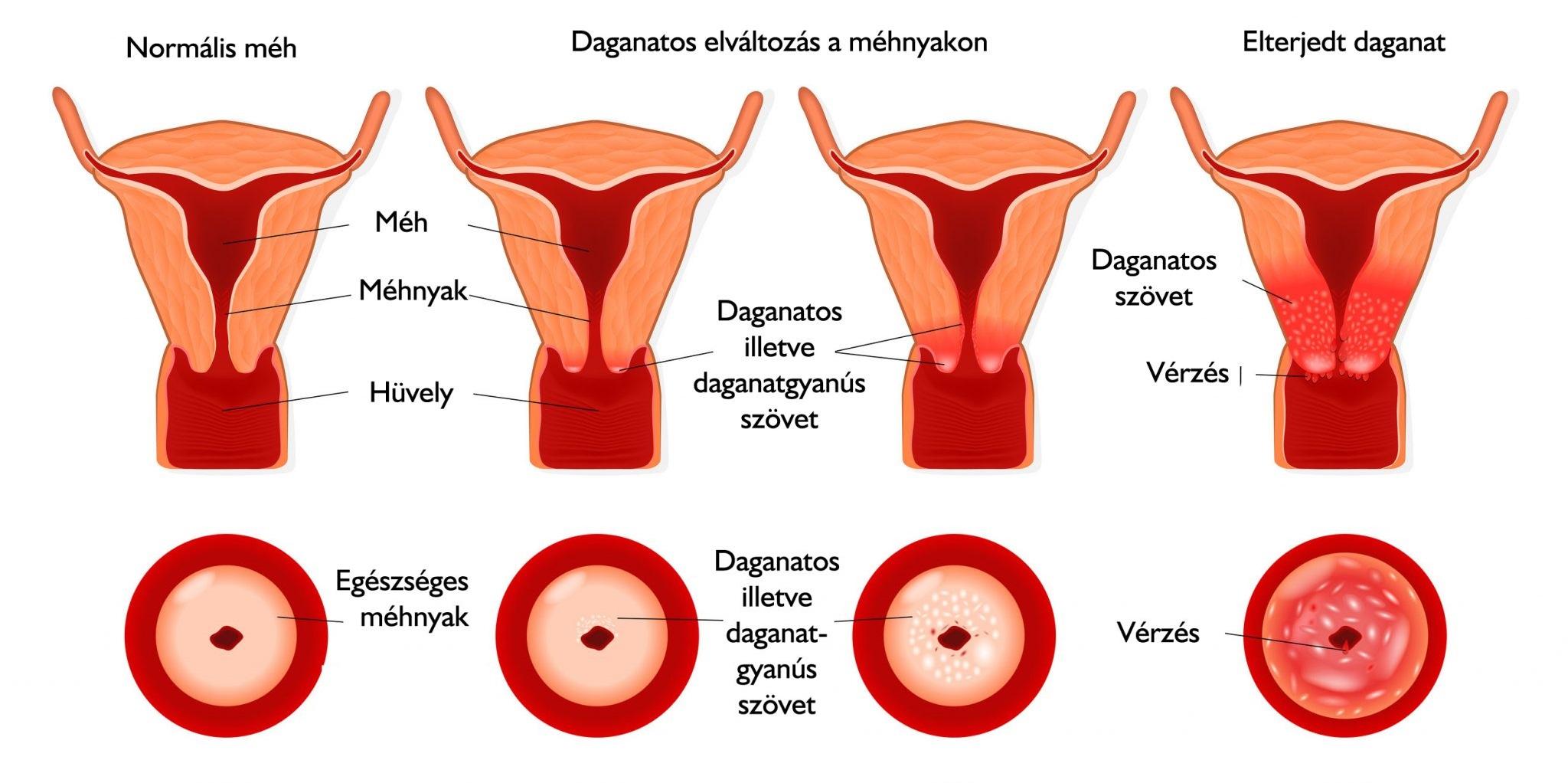 konilláció után papillomavírus)