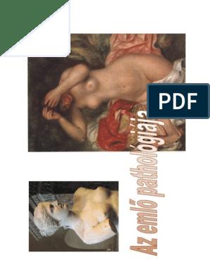 intraductalis papilloma biopszia)