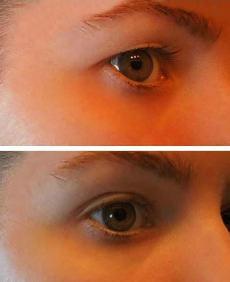 papillómák a szemhéjon, mint kezelni emberi papillomavírus fertőzés jelentése