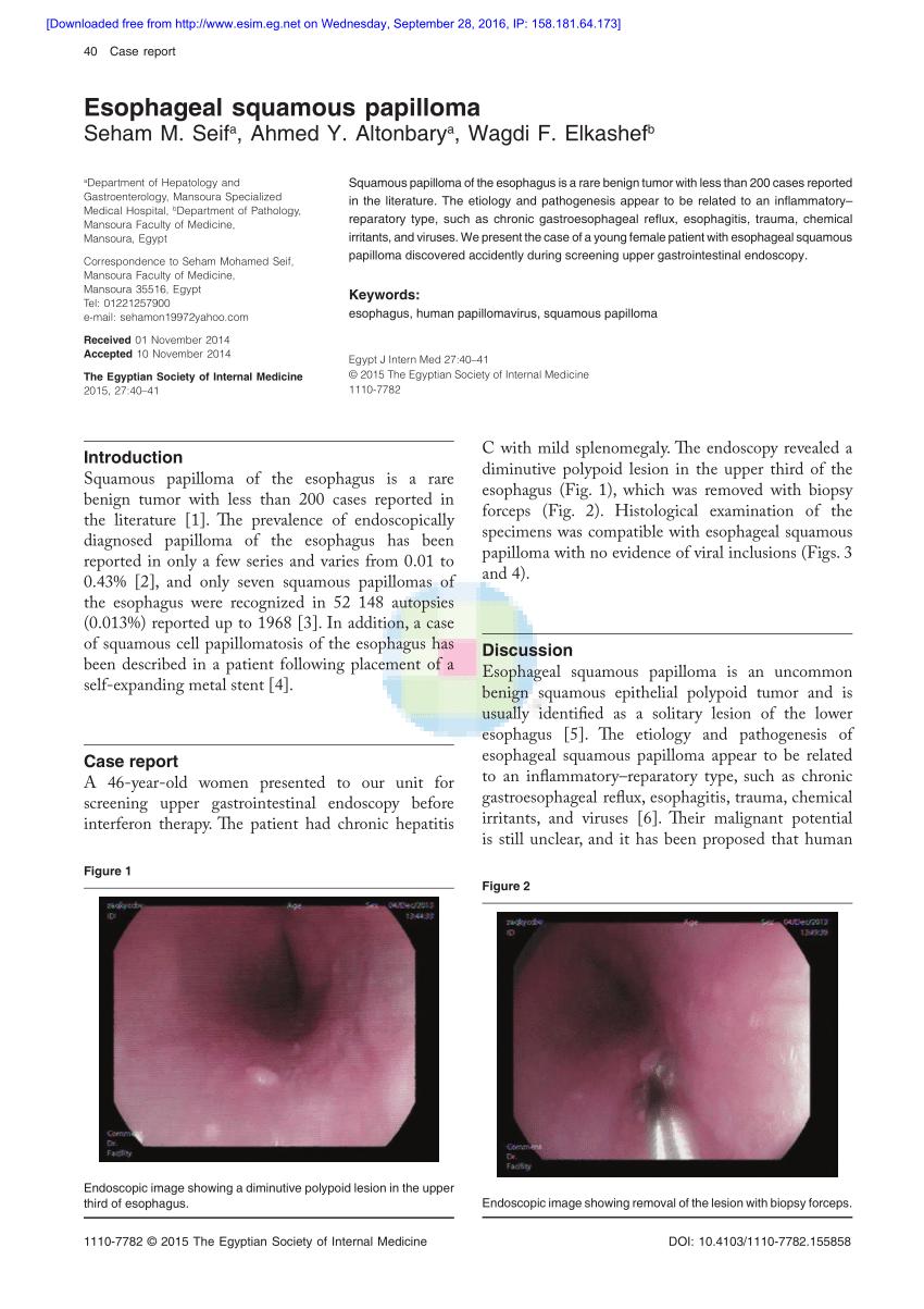 Húgyhólyag daganatok | Hungarian Oncology Network - bestgumi.hu
