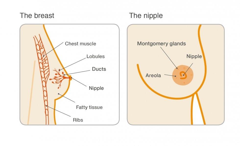 intraductalis papilloma tedavisi