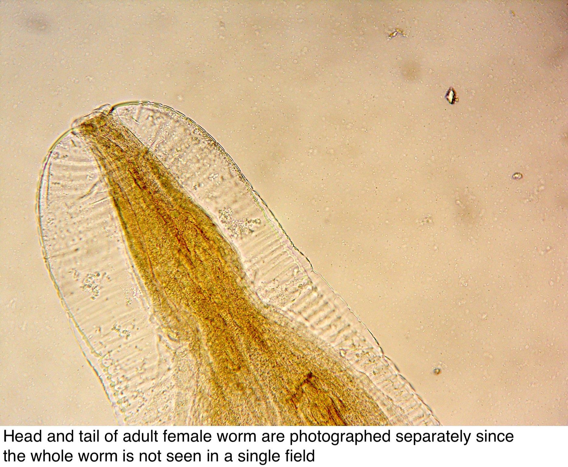 az enterobius vermicularis geohelmintus)