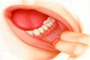 mandibuláris rák tünetei)