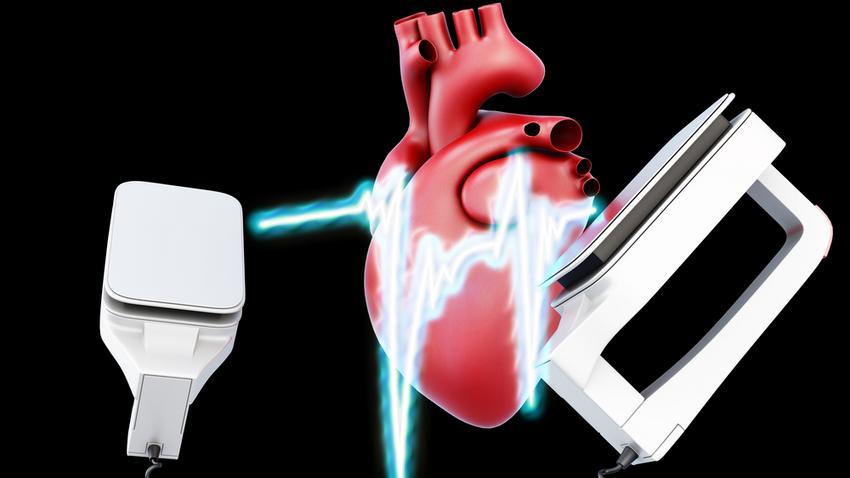 Szívbetegségek, kezelésük - Magyar Nemzeti Szívalapítvány