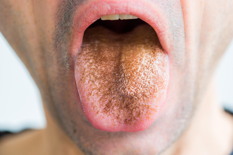 szemölcsök a szájban a nyelven galandférgesség