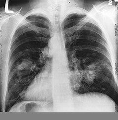 tüdőrák gyermekeknél)