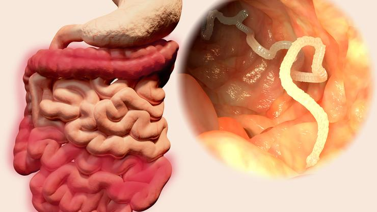 Giardia paraziti kod ljudi - Giardia parazita