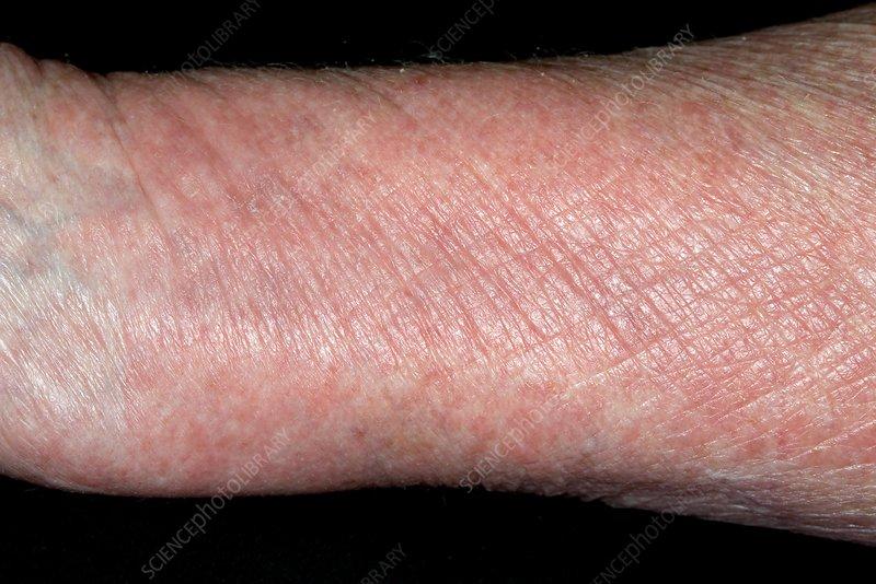 dermatitis exfoliativa jelentése magyarul