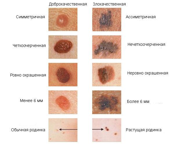 Herpesz a nemi szerveken: a nemi herpesz (herpes genitalis)