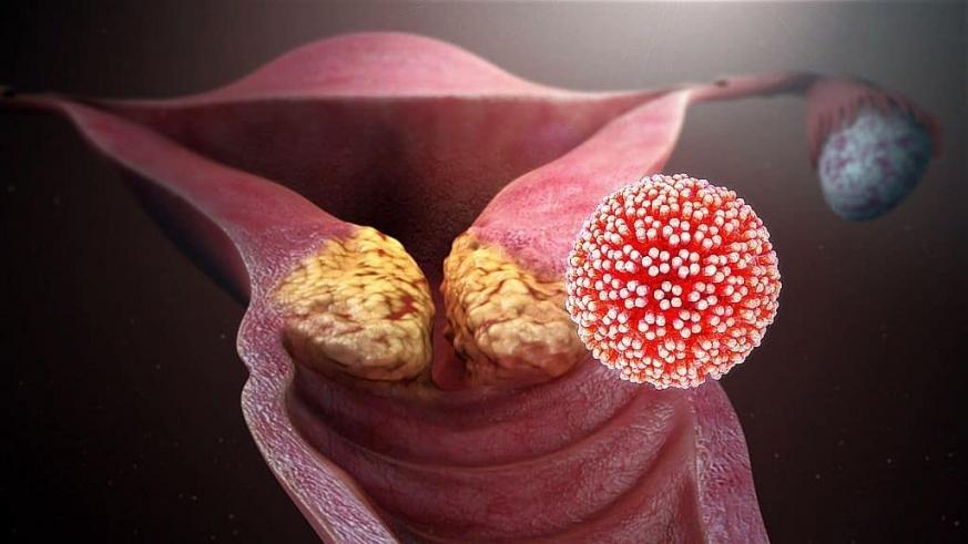 papilloma vírus vírus láz egy hét után)