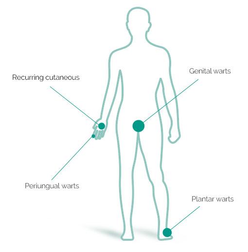 a condyloma komplex kezelése)