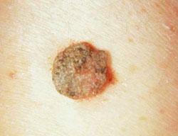bőrkezelés papilloma eltávolítása után