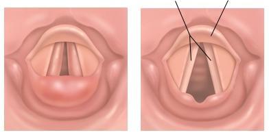 Papilloma az amygdalán: okok, tünetek, kezelés