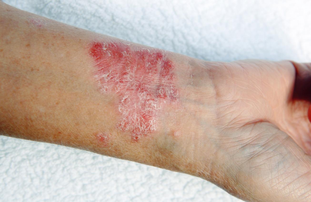 Légszomj, görcsök, puffadás: ezek a rákmegelőző stádium tünetei