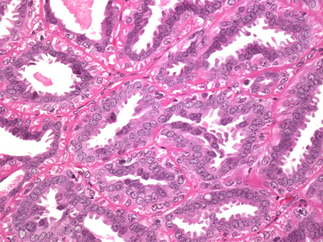intraductalis papilloma webpathology