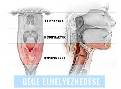 torokrák tünetei férfiak)