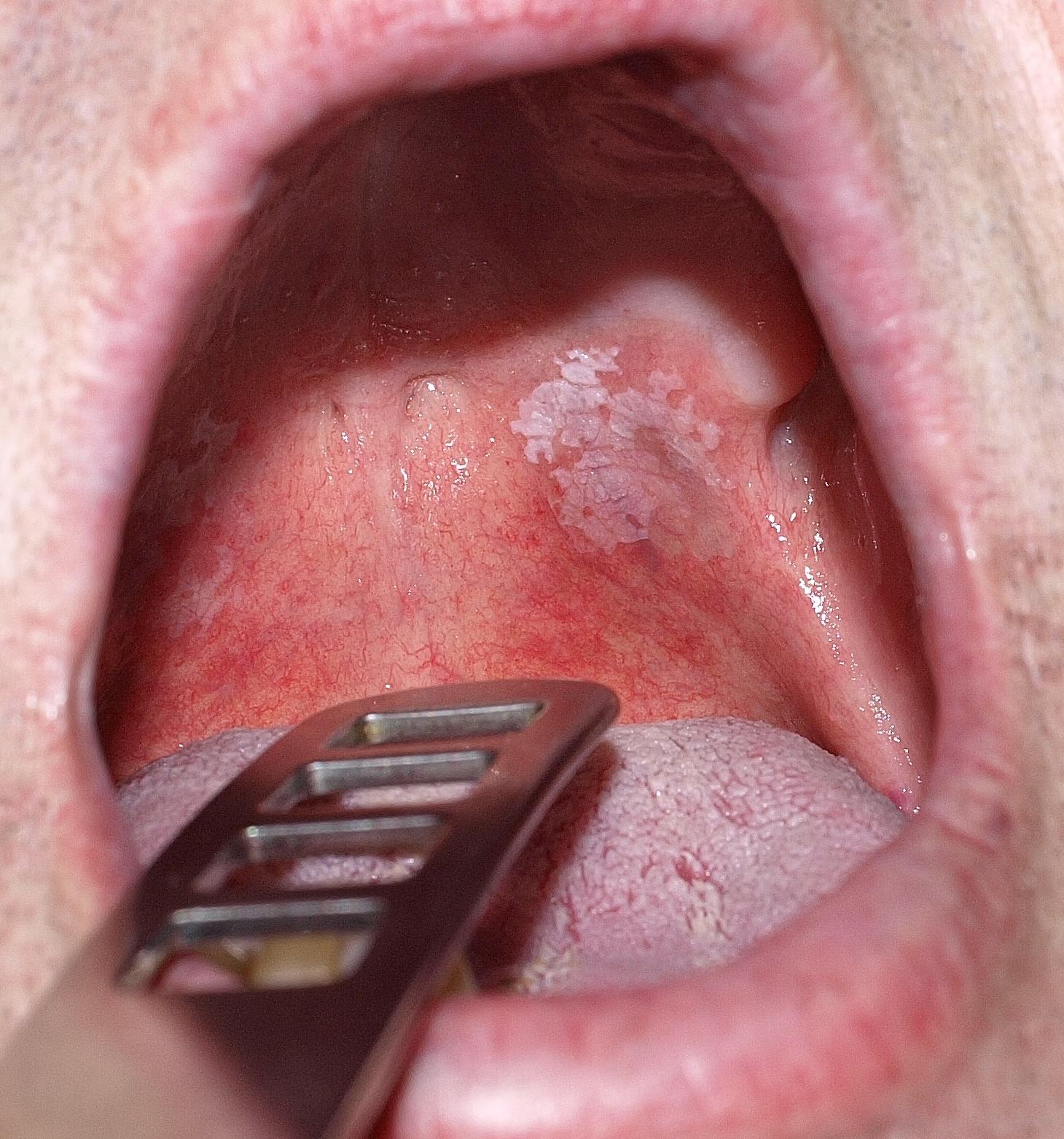 szemölcsök a szájban férfiaknál