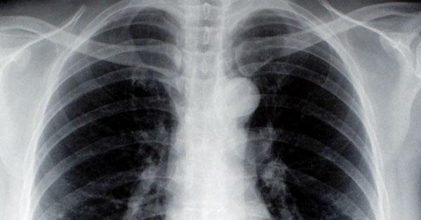 A tüdőrák okai és tünetei: előzzük meg a kialakulását