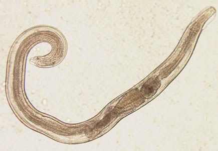 enterobius vermicularis terápia)