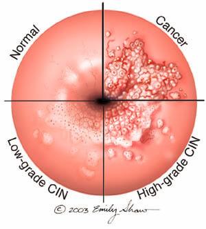 Hpv virus ferfiaknal kezelese