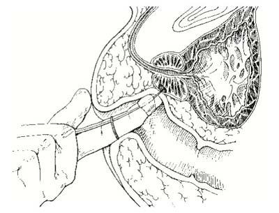 rektális rák patofiziológiája)