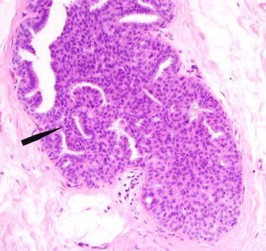 atipikus ductalis hyperplasia és papilloma)