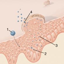 Condyloma eltávolítása | Medchir