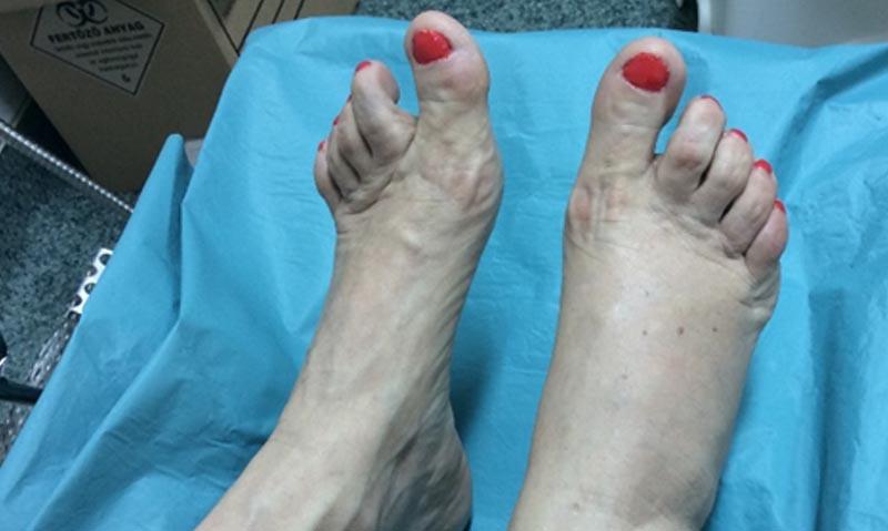 fekélyek a lábujjak oka között)
