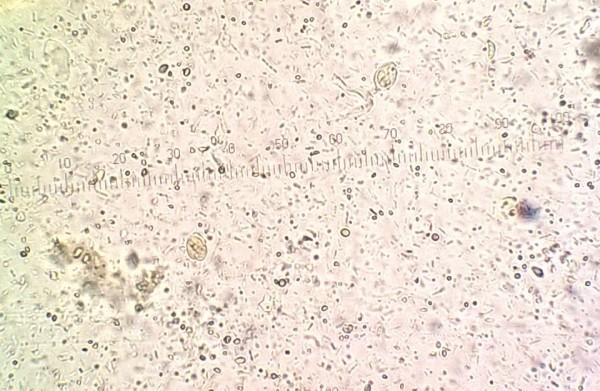 pierwotniak giardia u kota okozhat-e a hpv csontrákot