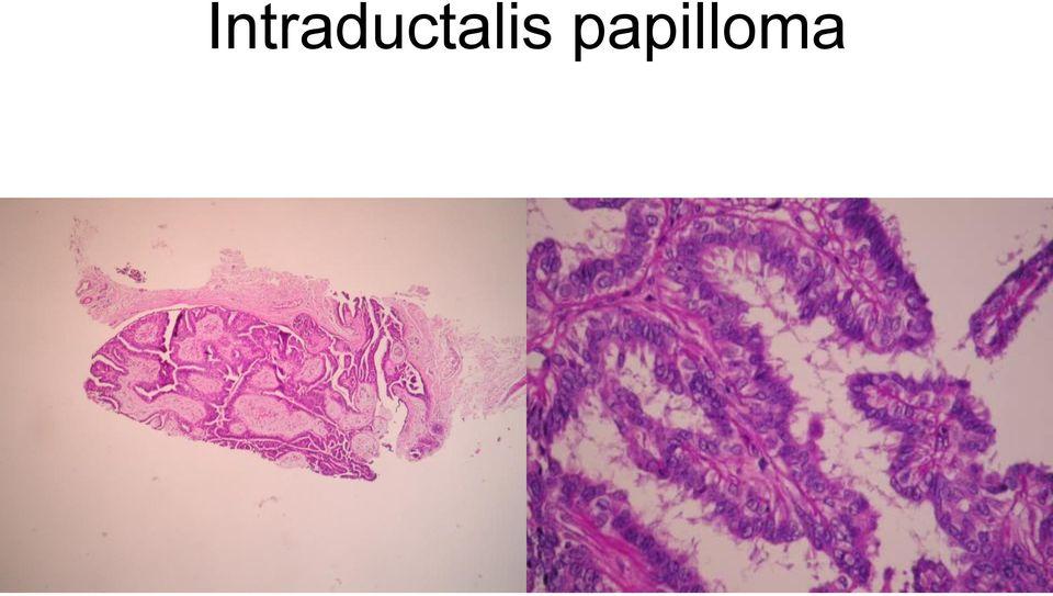 intraductalis papillómák terhesség alatt szemölcsök a női nemi szerveken