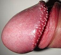 A hímvessző papillomatosisa – Wikipédia