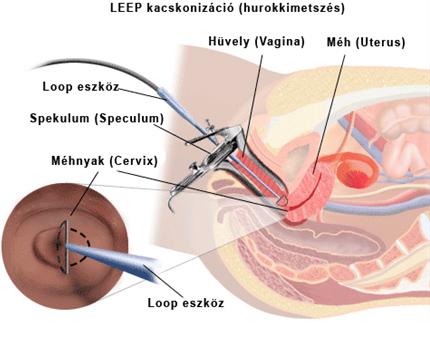 papillomavírus utáni műtét)