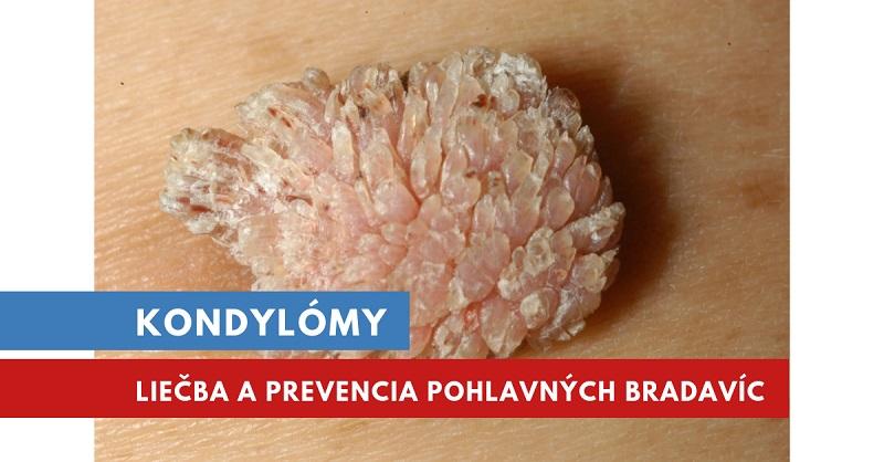 hpv vírus u muzov liecba)