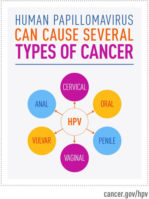 A gége jóindulatú daganatai