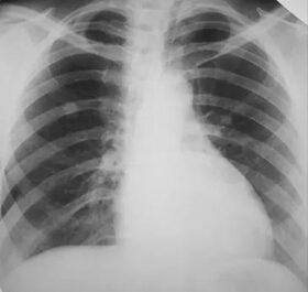 tüdőrák gyermekeknél